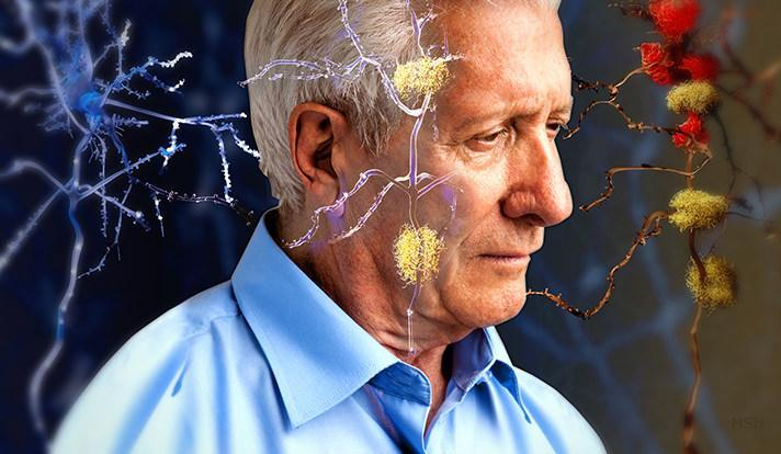Luces LED contra el Alzheimer